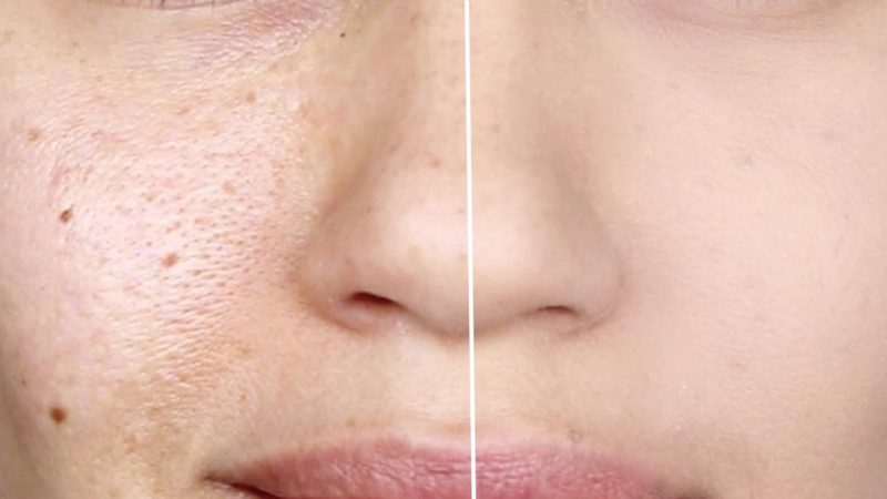 Before After Pore Treatment
