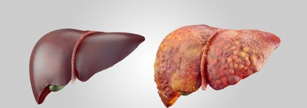 Healthy-liver-and-fatty-liver-600x211