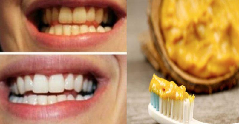သြားေတြကို ျဖဴ၀င္းေစဖို႔ နဲ႔ သြားဖံုး က်န္းမာေရးအတြက္ အိမ္မွာလုပ္ႏိုင္တဲ့ သဘာဝ သြားတိုက္ေဆး