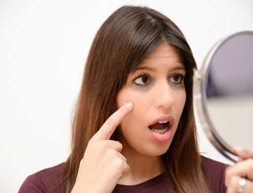 မျက်ကွင်းညိုတာကို ဖယ်ရှားပေးမယ့် ရိုးရှင်းလွယ်ကူတဲ့ နည်းလမ်း ၂ သွယ်
