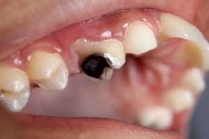 Dental_Caries_Cavity_2