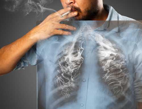 အဆုတ်ကင်ဆာရဲ့ ရှေ့ပြေး လက္ခဏာများ