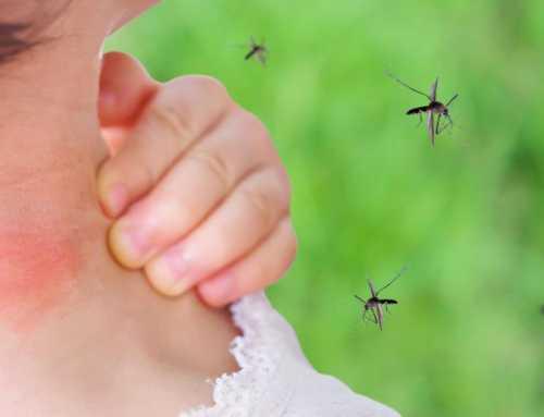 ခြင်ကိုက်ရာများအတွက် အိမ်တွင်းကုသနည်းများ